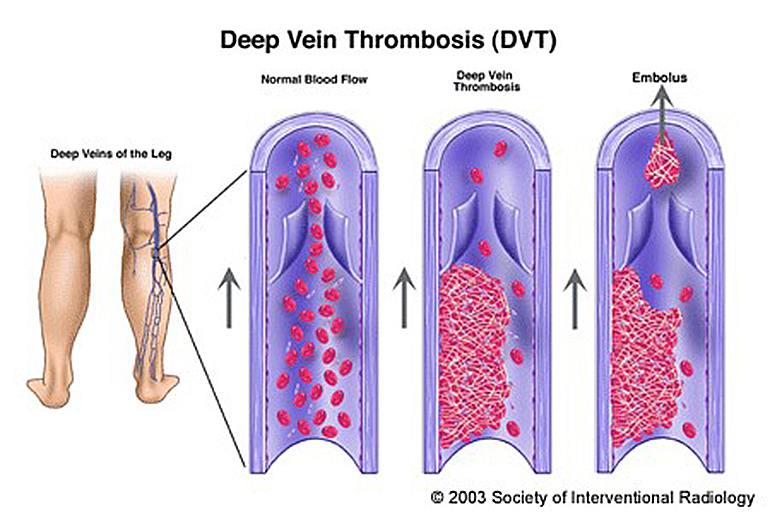 深層靜脈栓塞 (Deep vein thrombosis, DVT)
